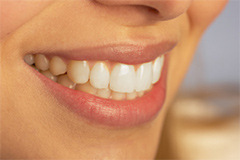 Teeth Whitening Sacramento cosmetic dentistry